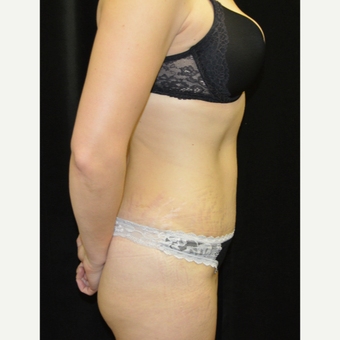 35-44 year old woman treated with Tummy Tuck after 3181691