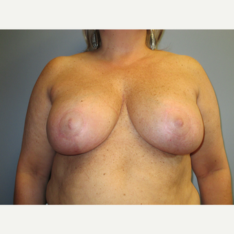 45-54 year old woman treated with Breast Reduction after 3538827