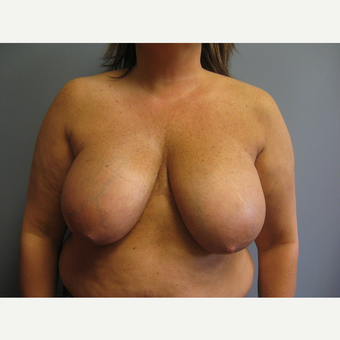 45-54 year old woman treated with Breast Reduction before 3538827