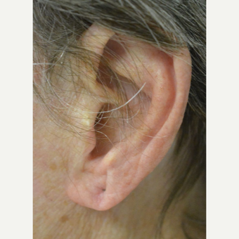 Age 75 and up woman treated with Ear Lobe lift Surgery before 3453098
