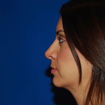 Rhinoplasty + Chin Implant after 1365297