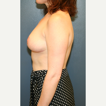 35-44 year old woman treated with Breast Reduction after 3475567