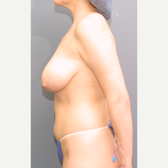 35-44 year old woman treated with Breast Reduction before 3475567