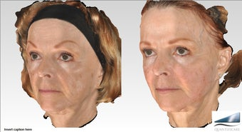 64 year old Voluma Liquid Facelift, 12 syringes before 1161556