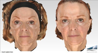 64 year old Voluma Liquid Facelift, 12 syringes after 1161556