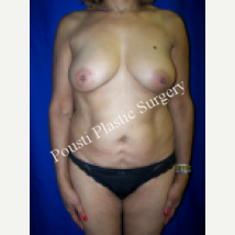 55-64 year old woman treated with Breast Implants before 1538707