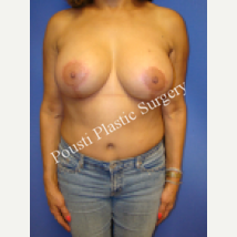 55-64 year old woman treated with Breast Implants after 1538707