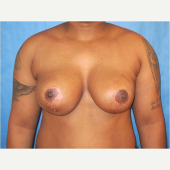 26 year old woman treated with Breast Reduction after 3727240
