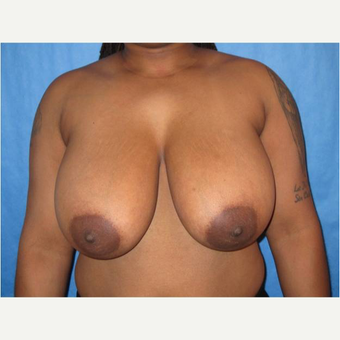 26 year old woman treated with Breast Reduction before 3727240