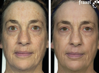 Fraxel for pigmentation and skin laxity before 8530