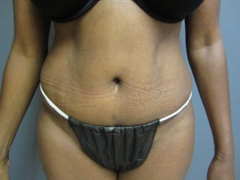 53 year old female presents for a tummy tuck after 673132
