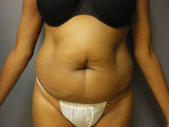53 year old female presents for a tummy tuck before 673132