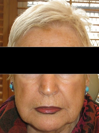 75 and up year old woman treated with Radiesse