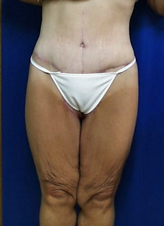body lift in a bariatric patient