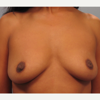 35-44 year old woman treated with Breast Lift with Implants before 3423417