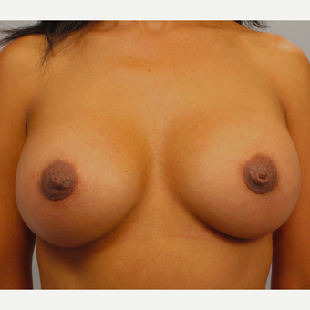 35-44 year old woman treated with Breast Lift with Implants after 3423417