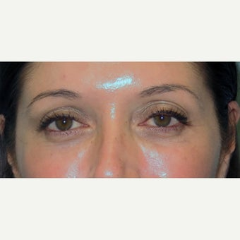35-44 year old woman treated with Eye Bags Treatment after 2438508