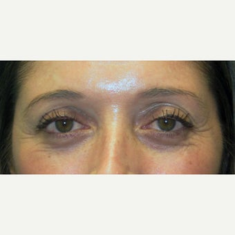 35-44 year old woman treated with Eye Bags Treatment before 2438508