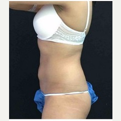 25-34 year old woman treated with CoolSculpting after 3181774