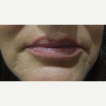 45-54 year old woman treated with Volbella before 3703736
