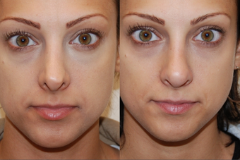 Non-Surgical Nose Job before 213043
