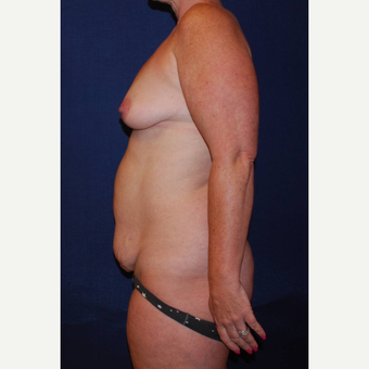 35-44 year old woman treated with Breast Lift with Implants before 3293962