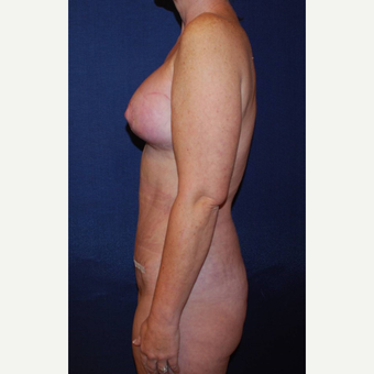 35-44 year old woman treated with Breast Lift with Implants after 3293962
