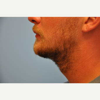 25-34 year old man treated with ThermiTight and Chin Implant after 3059741