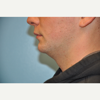 25-34 year old man treated with ThermiTight and Chin Implant before 3059741