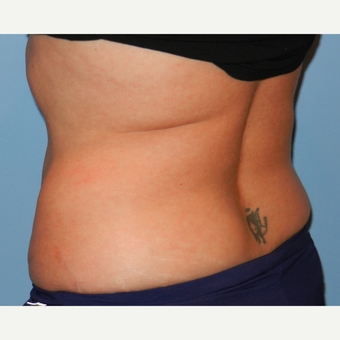 35-44 year old woman treated with CoolSculpting after 3748663