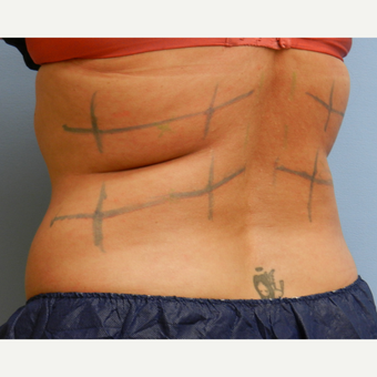 35-44 year old woman treated with CoolSculpting before 3748663