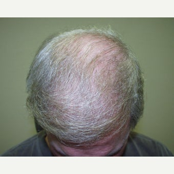 45-54 year old man treated with Hair Transplant after 2233629