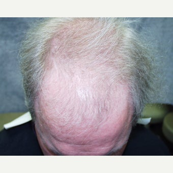 45-54 year old man treated with Hair Transplant before 2233629