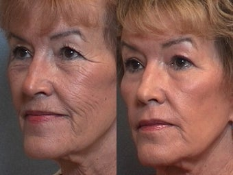 Woman Treated for Wrinkles Without Doing A Face LIft before 1271509