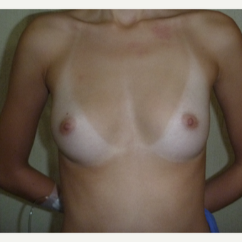 25-34 year old woman treated with Breast Augmentation before 3266386