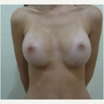 25-34 year old woman treated with Breast Augmentation after 3266386