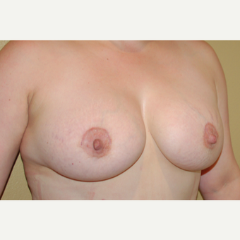 25-34 year old woman treated with Breast Augmentation after 3506545