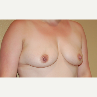 25-34 year old woman treated with Breast Augmentation before 3506545