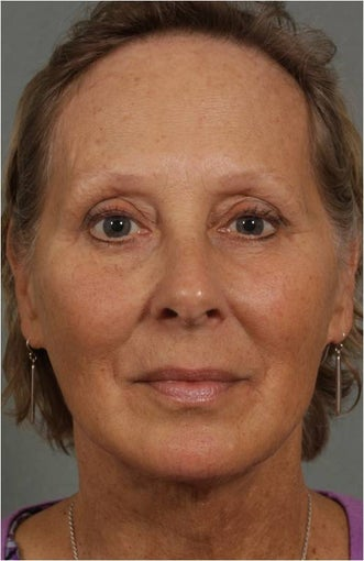 62 year old female with loss of facial volume contributing to sagging along her neck and jaw line after 983622