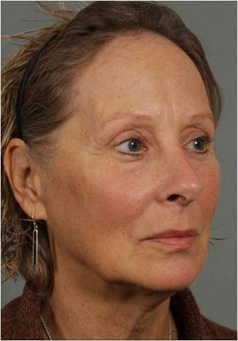 62 year old female with loss of facial volume contributing to sagging along her neck and jaw line 983622