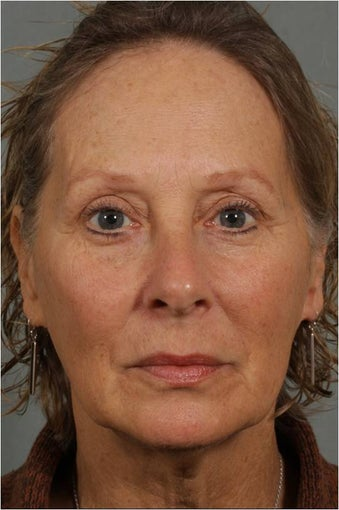 62 year old female with loss of facial volume contributing to sagging along her neck and jaw line before 983622