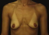 Bilateral Breast Augmentation with Crescent Lift before 1011824