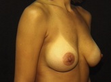 Bilateral Breast Augmentation with Crescent Lift 1011824
