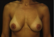 Bilateral Breast Augmentation with Crescent Lift after 1011824