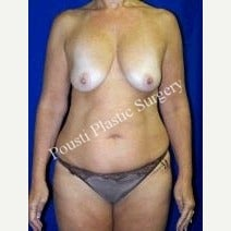 45-54 year old woman treated with Breast Implants before 1549185
