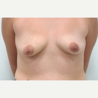 25-34 year old woman treated with Breast Augmentation before 3695777
