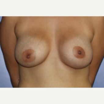 25-34 year old woman treated with Breast Augmentation after 3695777