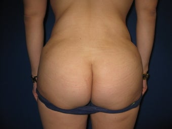 33 Year Old Female Treated for Buttocks Shaping after 1090513