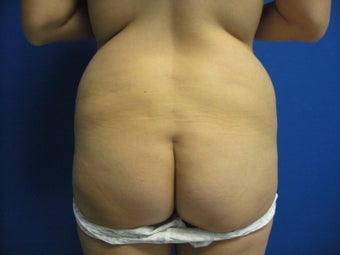 33 Year Old Female Treated for Buttocks Shaping before 1090513