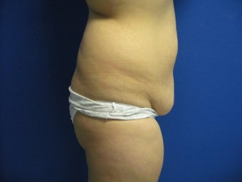 33 Year Old Female Treated for Buttocks Shaping 1090513